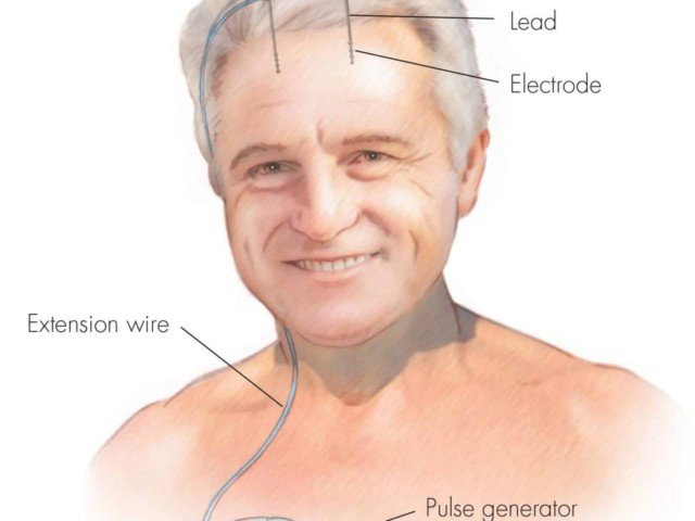 What is Deep Brain Stimulation? How does DBS work?