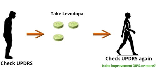 The Levodopa challenge test is an important part of the DBS procedure