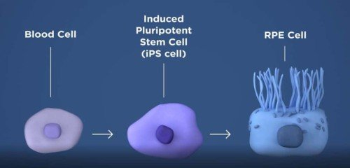 InducedPluripotentCell