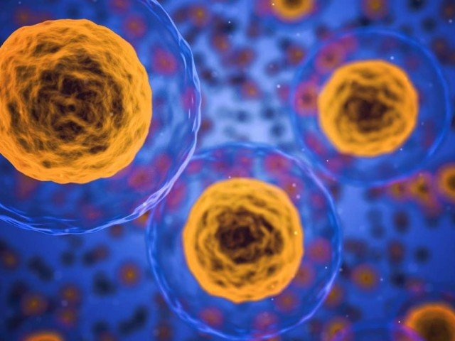 Slowing Parkinson's Progression [stem cell therapy for parkinson's]
