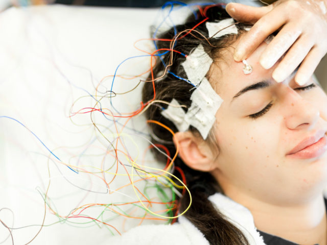 What are the EEG findings in Epilepsy?