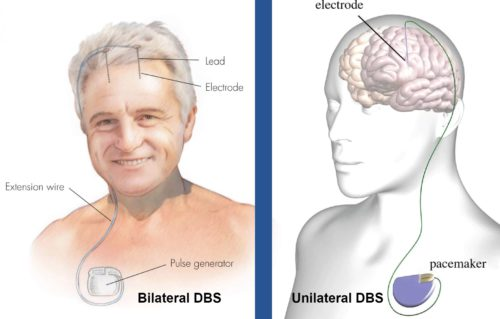 bilateral DBS versus unilaeral dbs cost in india