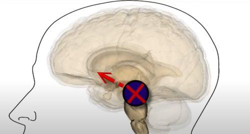 midbrain dopamine parkinsons