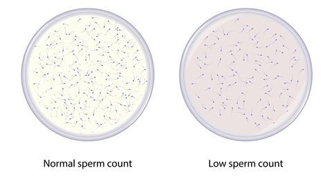 Low sperm count e1620912638256
