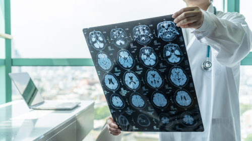 Brain disease diagnosis with medical doctor seeing Magnetic Resonance Imaging MRI film diagnosing elderly ageing patient neurodegenerative illness problem for neurological medical treatment