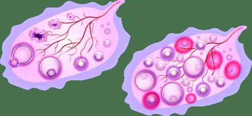 ovary, utero, uterus