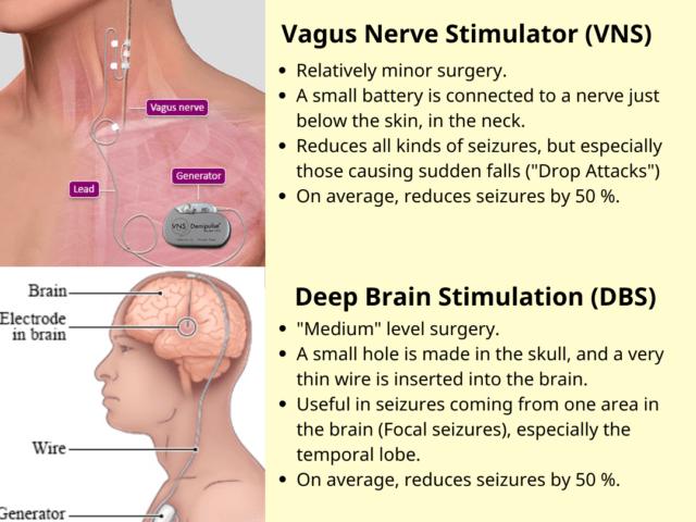 NEUROSTIMULATION FOR EPILEPSY / SEIZURES